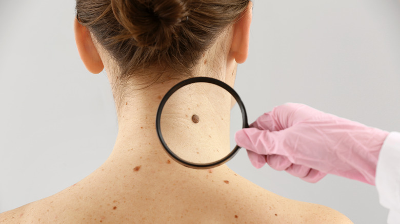 Doctor explains when you should be concerned about your mole