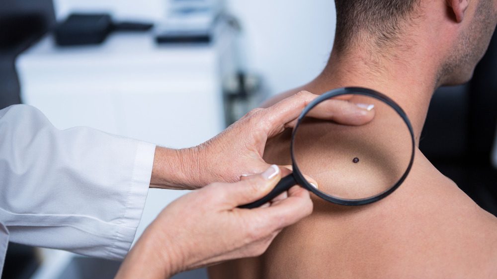 doctor examines mole on man's back